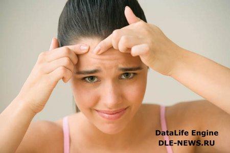 Лечение юношеских угрей