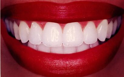 Удалить или сохранить больной зуб?