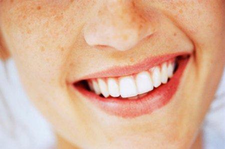 Рецепт белоснежной улыбки
