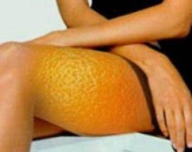 Диета против апельсиновой корки
