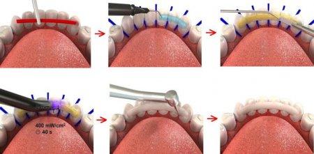 Фиксирующие материалы в ортодонтии: основные требования
