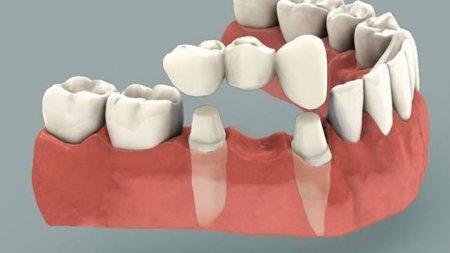 Стоматологическая ортопедия